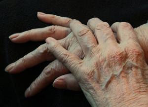 Sono Alzheimer